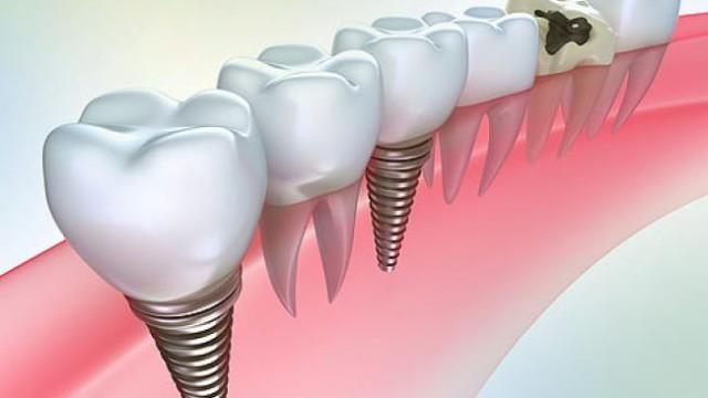vidi-protezirovaniya-zubov___1